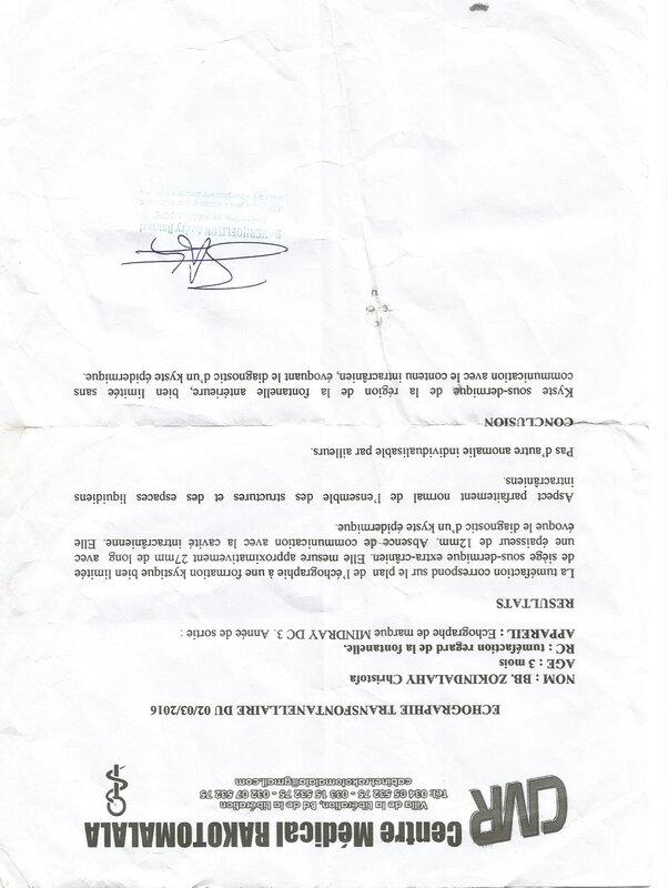 Fontanelle ZOKINDA Christofa né le 19 11 150009