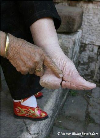 pieds_mutiles6