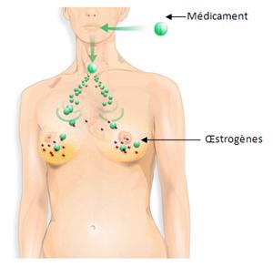 Traiter le cancer du sein