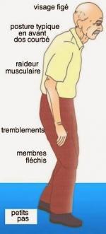 parkinson posture