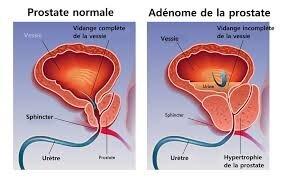 """Résultat de recherche d'images pour """"image prostate"""""""