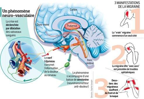 20 remèdes naturels pour soulager votre migraine
