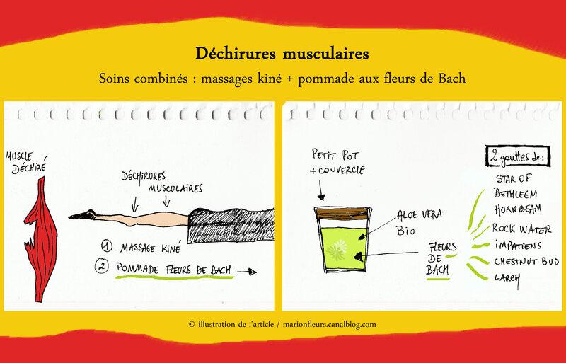 dechirure_musculaire_fleurs_de_bach_marionfleurs